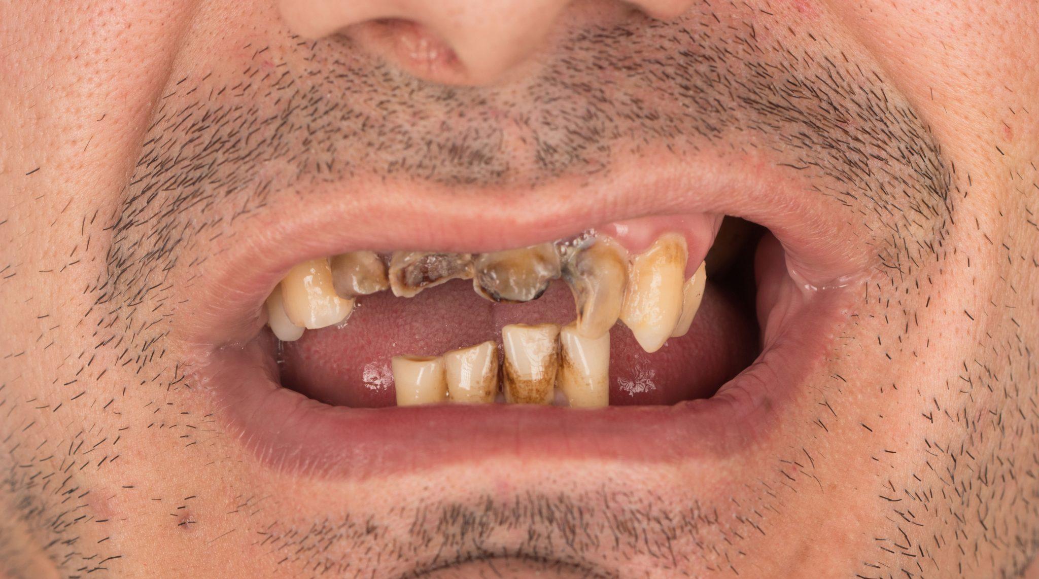 Implantes-dentarios-em-um-dia
