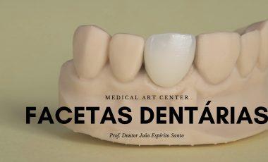 Facetas dentárias: tudo o que precisa saber!