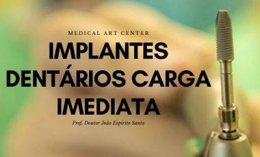 """Implantes Carga Imediata – Tenha os seus """"dentes"""" no próprio dia"""